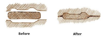 Metal Stamping 03